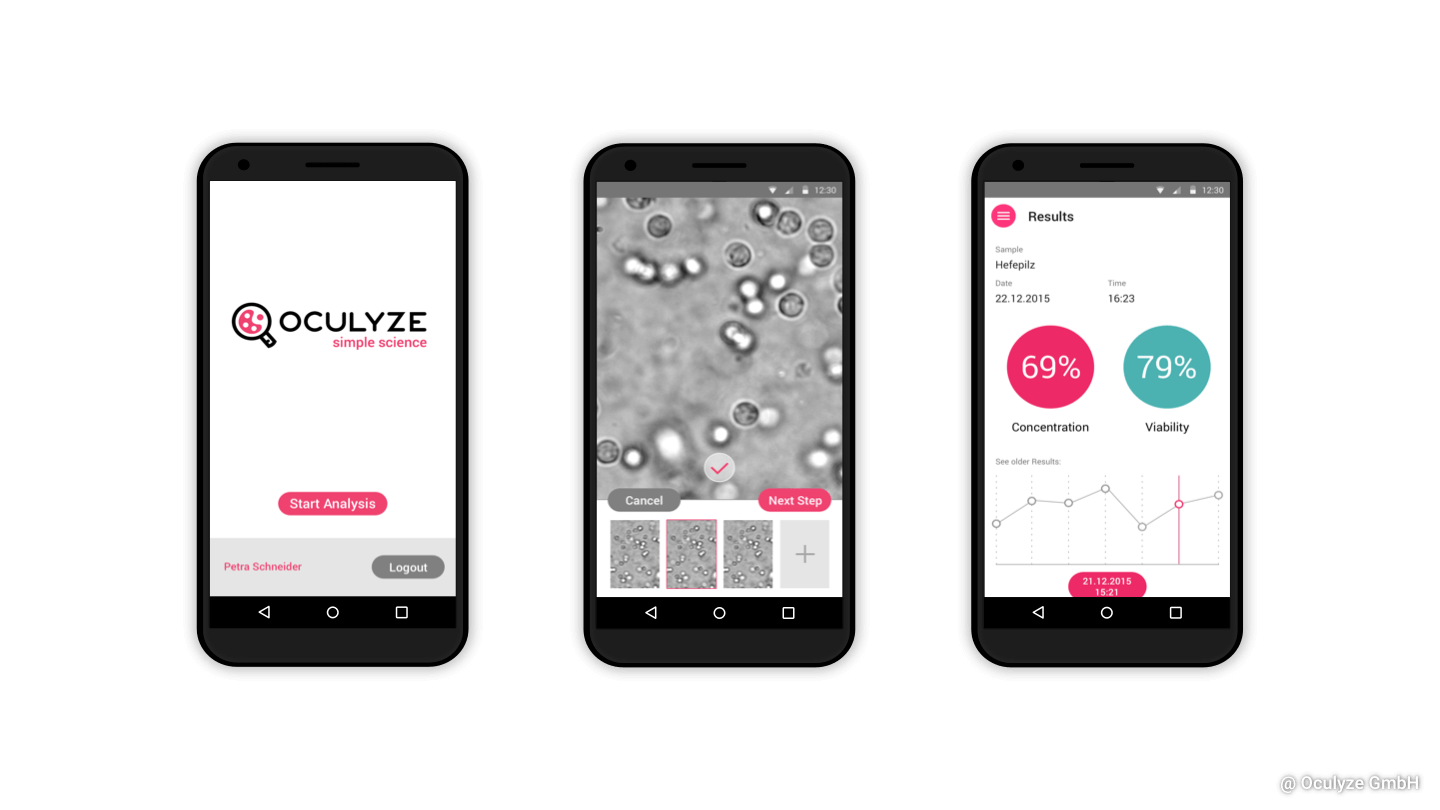 oculyze microscope smartphone application